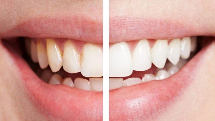 Evde karbonatla diş beyazlatma nasıl yapılır